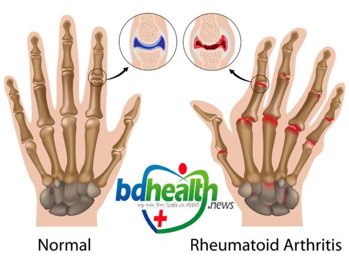 গিটে বাত,Arthritis