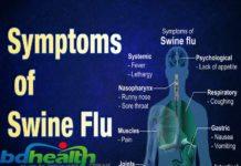 সোয়াইন ফ্লু,Swine flu