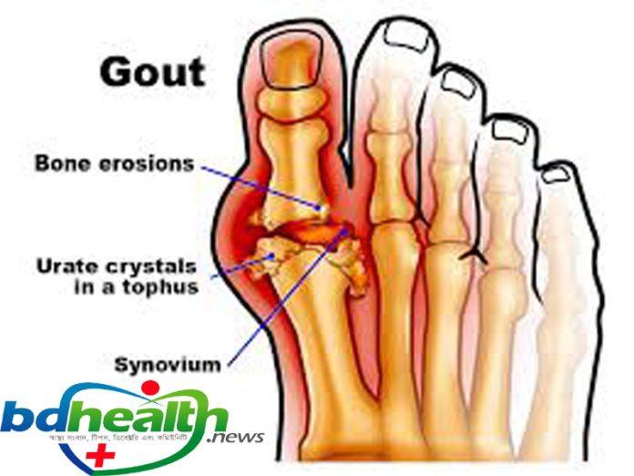 গেঁটে বাত,gout