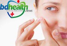 ব্রণ প্রতিরোধ,how to prevent acne