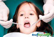 দাঁতের সমস্যা ও লক্ষণ,দাঁতের সমস্যা ,teeth problem